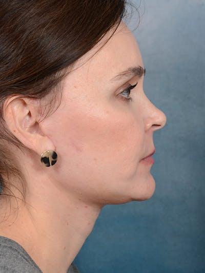 Facelift Gallery - Patient 26207310 - Image 10