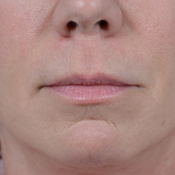 Lip Lift Gallery - Patient 48086365 - Image 1