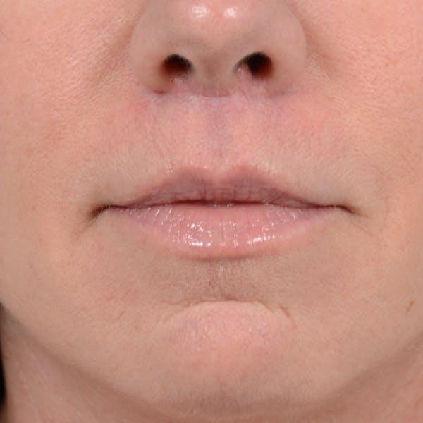 Lip Lift Gallery - Patient 48086365 - Image 2