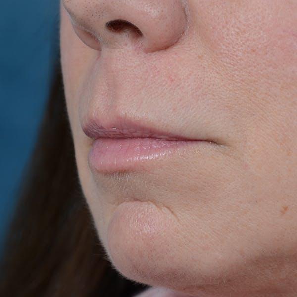 Lip Lift Gallery - Patient 48086365 - Image 3