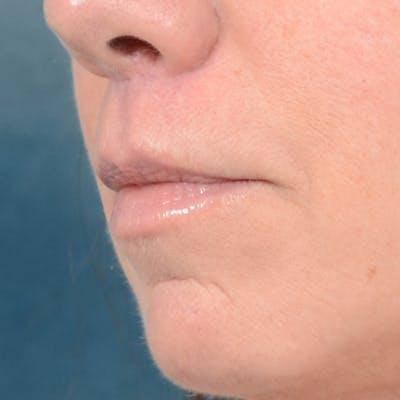 Lip Lift Gallery - Patient 48086365 - Image 4