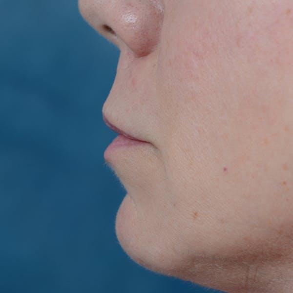 Lip Lift Gallery - Patient 48086365 - Image 5