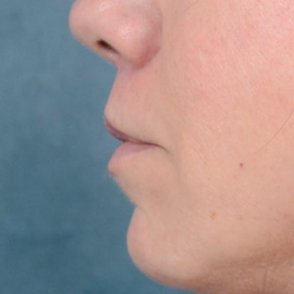 Lip Lift Gallery - Patient 48086365 - Image 6
