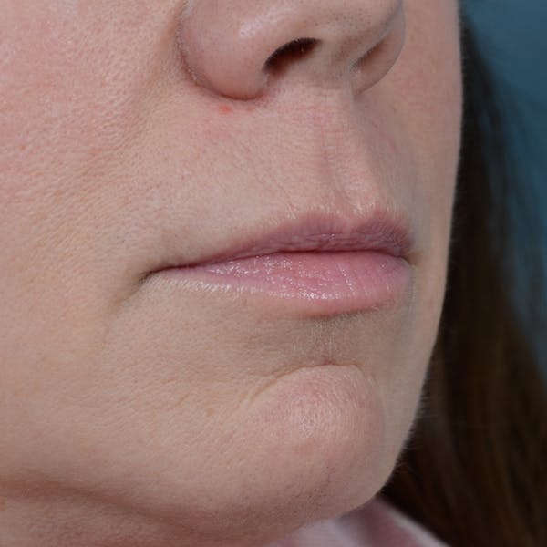 Lip Lift Gallery - Patient 48086365 - Image 7