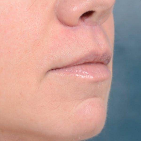 Lip Lift Gallery - Patient 48086365 - Image 8