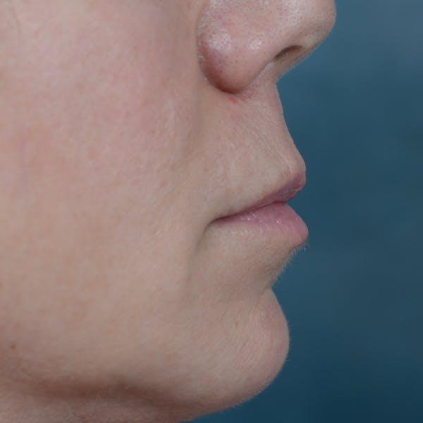Lip Lift Gallery - Patient 48086365 - Image 9