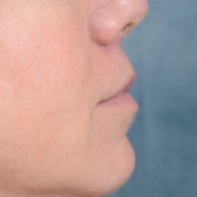 Lip Lift Gallery - Patient 48086365 - Image 10