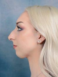 Rhinoplasty Gallery - Patient 49260523 - Image 1