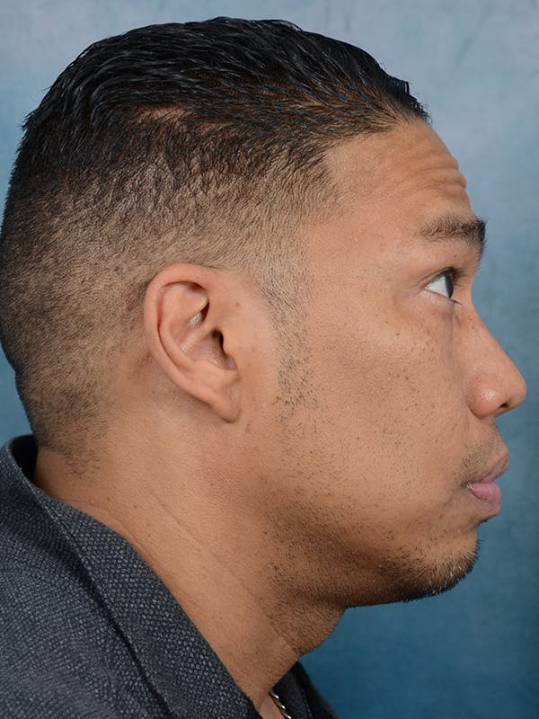 Chin Augmentation Gallery - Patient 49861773 - Image 5