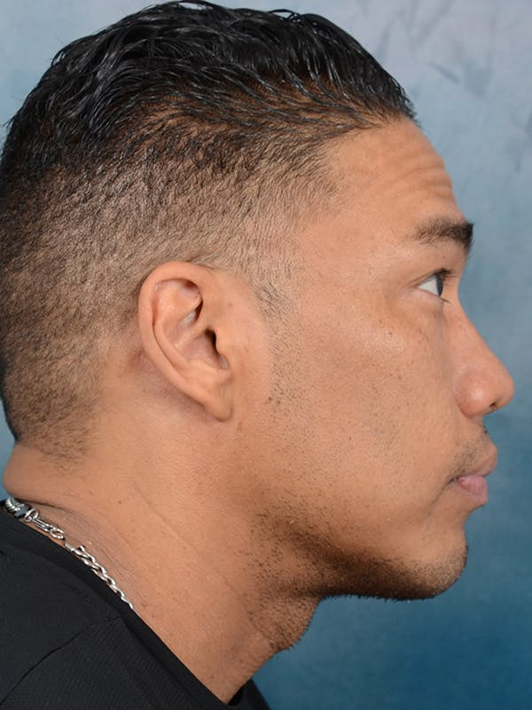 Chin Augmentation Gallery - Patient 49861773 - Image 6