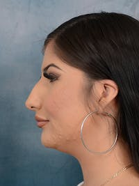 Rhinoplasty Gallery - Patient 51416427 - Image 1
