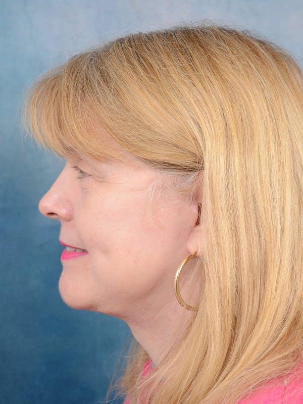 Facelift Gallery - Patient 54240754 - Image 6