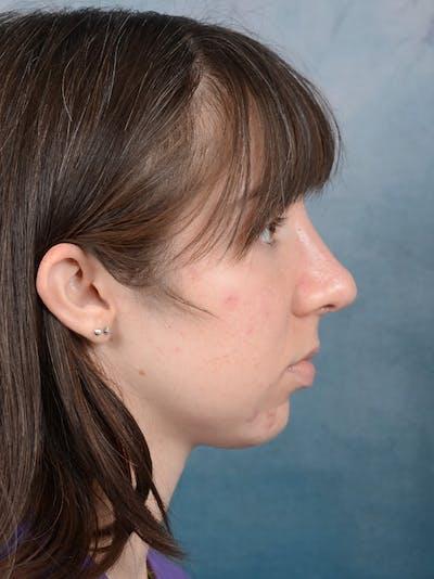 Rhinoplasty Gallery - Patient 54248944 - Image 10