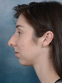 Rhinoplasty Gallery - Patient 54248944 - Image 1