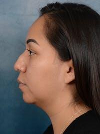 Rhinoplasty Gallery - Patient 57576535 - Image 1