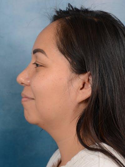 Rhinoplasty Gallery - Patient 57576535 - Image 2