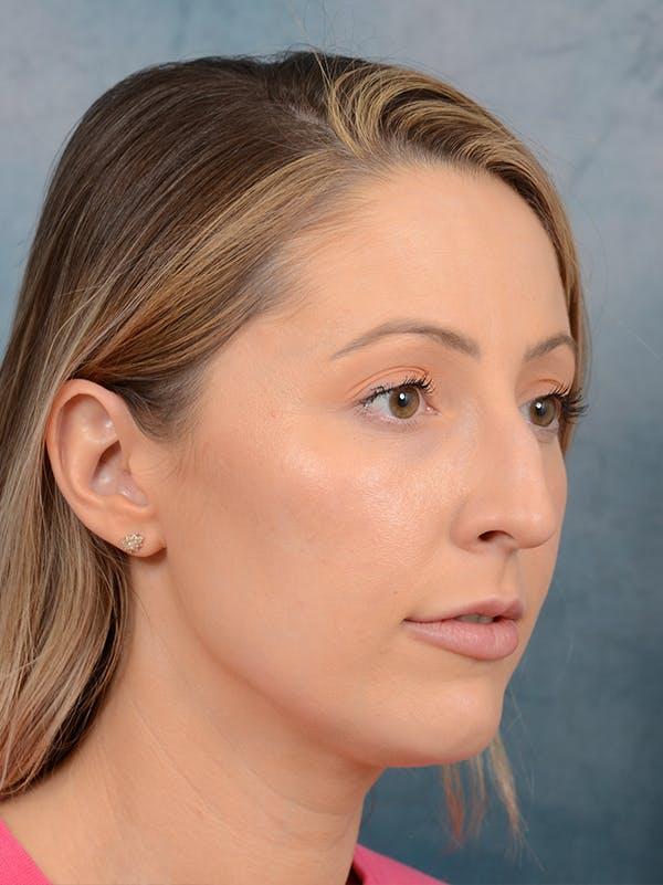 Rhinoplasty Gallery - Patient 61874293 - Image 7
