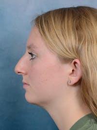 Rhinoplasty Gallery - Patient 65489721 - Image 1