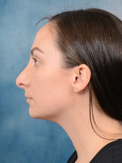 Revision Rhinoplasty Gallery - Patient 65489739 - Image 1