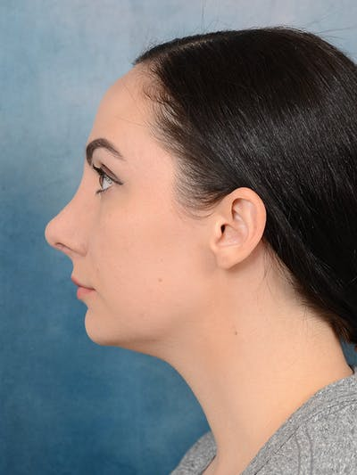 Revision Rhinoplasty Gallery - Patient 65489739 - Image 2