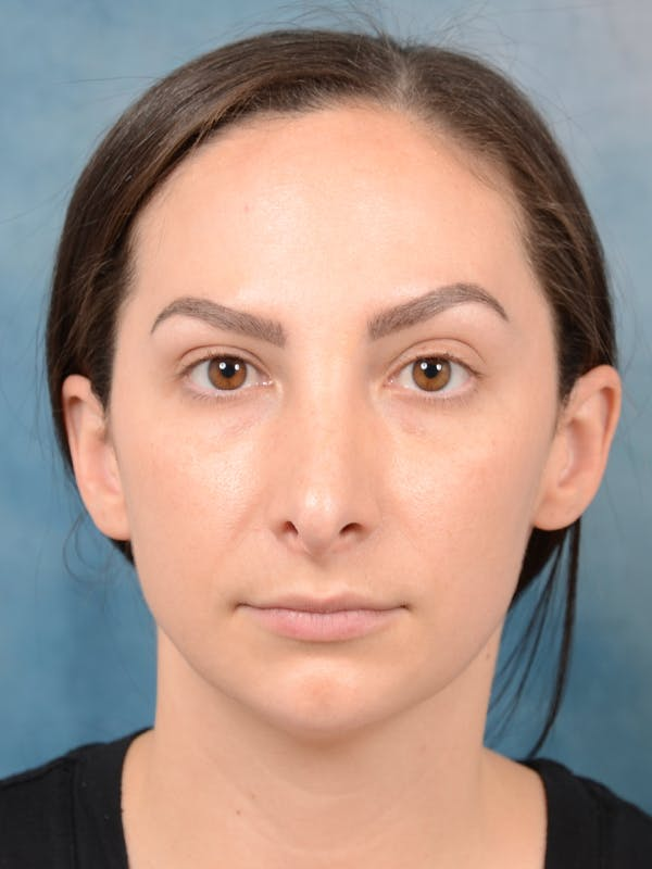 Revision Rhinoplasty Gallery - Patient 65489739 - Image 3