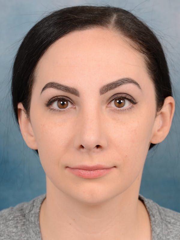Revision Rhinoplasty Gallery - Patient 65489739 - Image 4