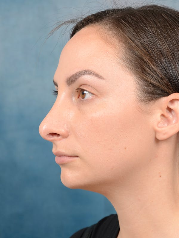 Revision Rhinoplasty Gallery - Patient 65489739 - Image 5