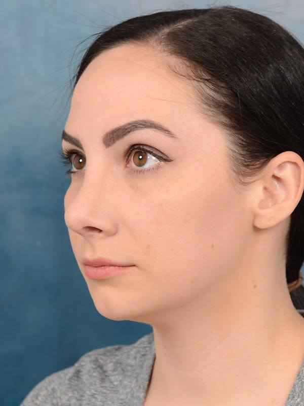Revision Rhinoplasty Gallery - Patient 65489739 - Image 6