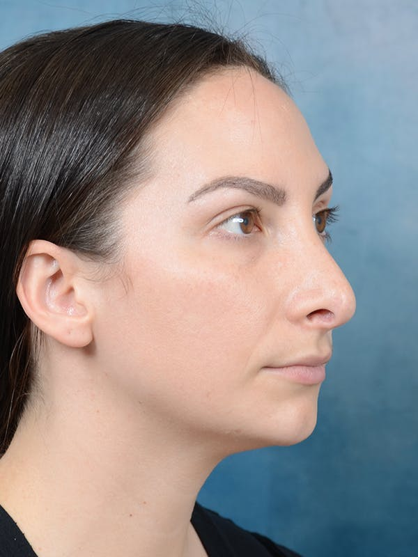 Revision Rhinoplasty Gallery - Patient 65489739 - Image 7