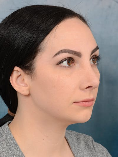 Revision Rhinoplasty Gallery - Patient 65489739 - Image 8