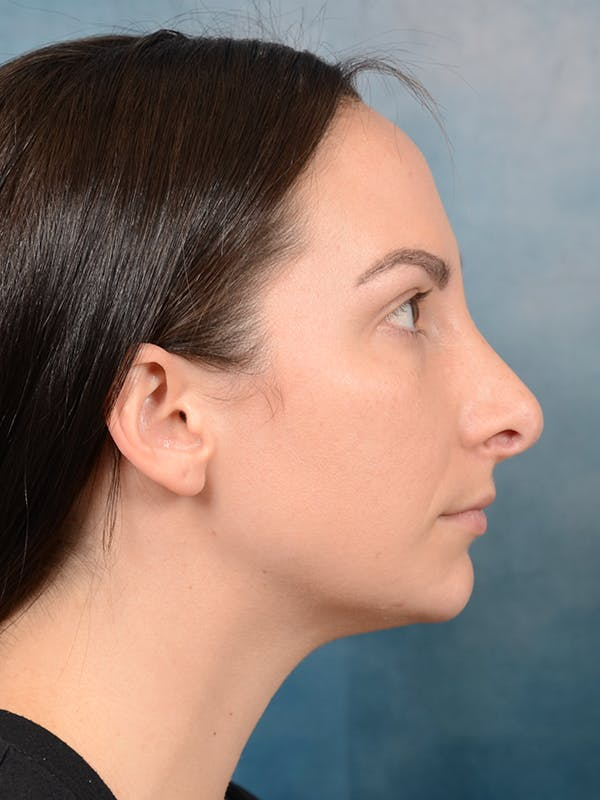 Revision Rhinoplasty Gallery - Patient 65489739 - Image 9