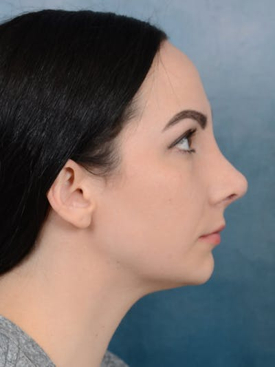Revision Rhinoplasty Gallery - Patient 65489739 - Image 10