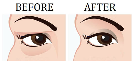 Eyelid surgery diagram