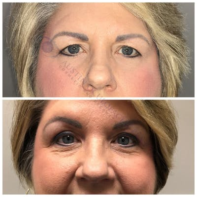 Heavy Upper Eyelids Gallery - Patient 4698669 - Image 1