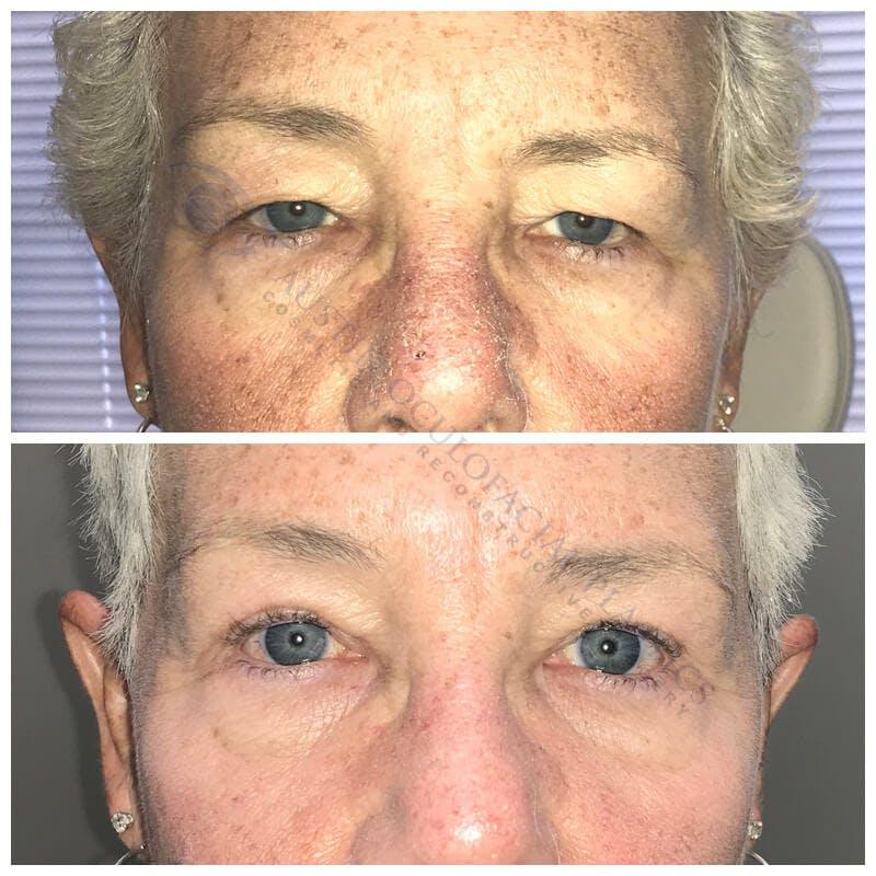 Heavy Upper Eyelids Gallery - Patient 4698670 - Image 1