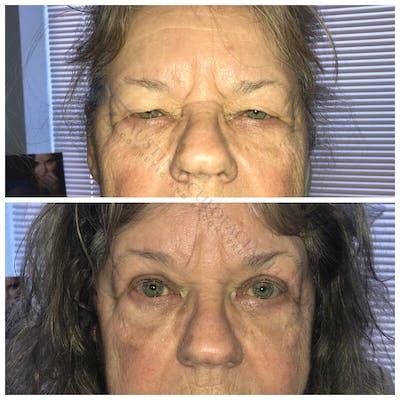 Heavy Upper Eyelids Gallery - Patient 4698671 - Image 1