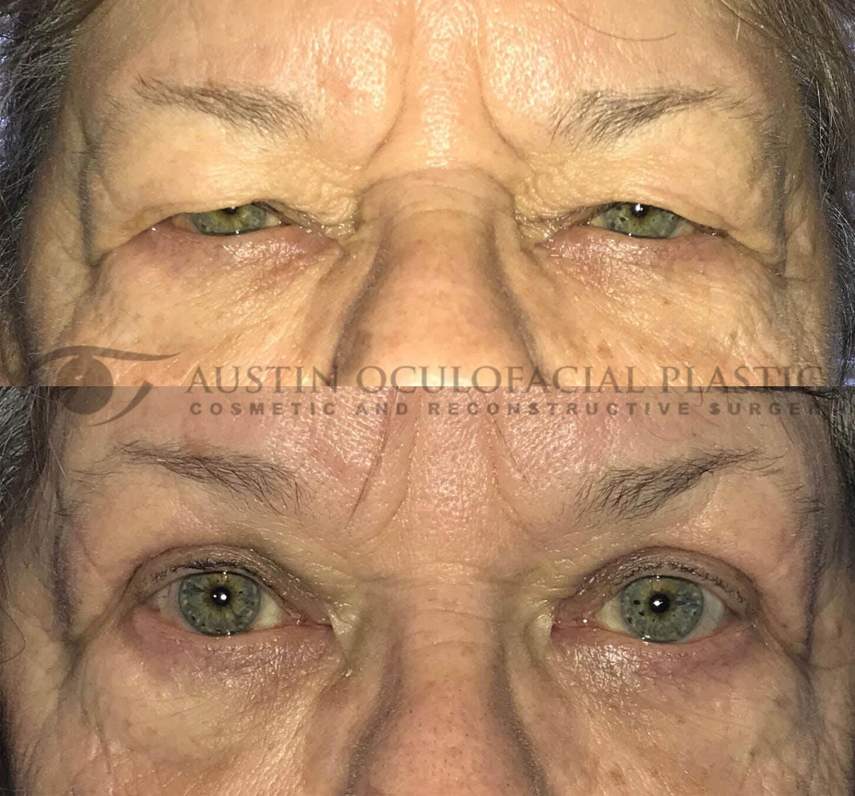 Heavy Upper Eyelids Gallery - Patient 4698672 - Image 1