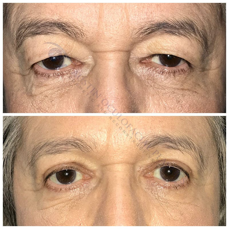 Heavy Upper Eyelids Gallery - Patient 4698673 - Image 1