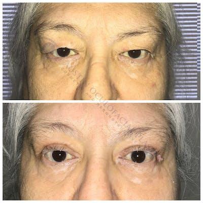 Heavy Upper Eyelids Gallery - Patient 4698674 - Image 1