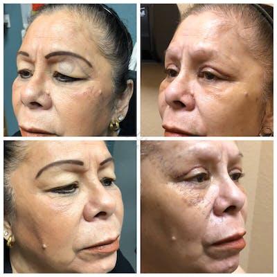 Heavy Upper Eyelids Gallery - Patient 4698675 - Image 1