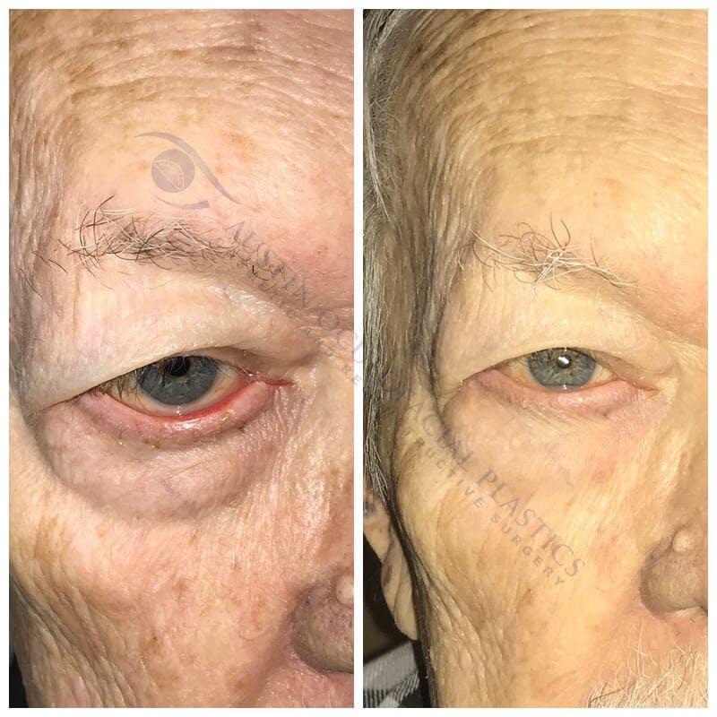 Heavy Upper Eyelids Gallery - Patient 4698676 - Image 1