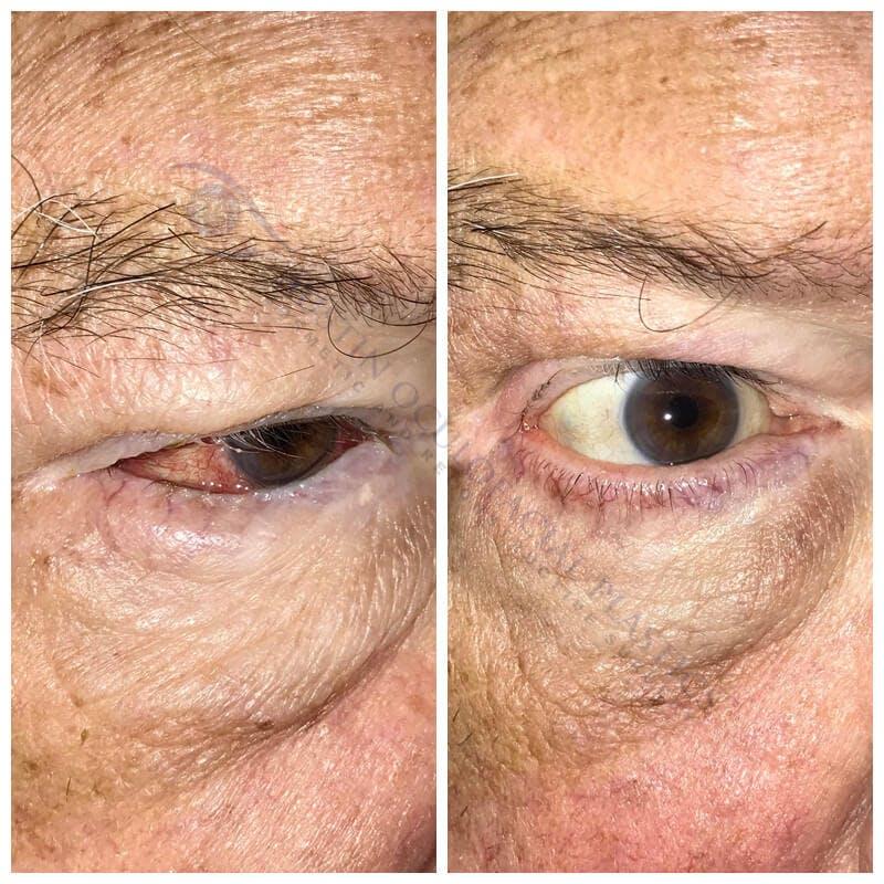 Heavy Upper Eyelids Gallery - Patient 4698677 - Image 1