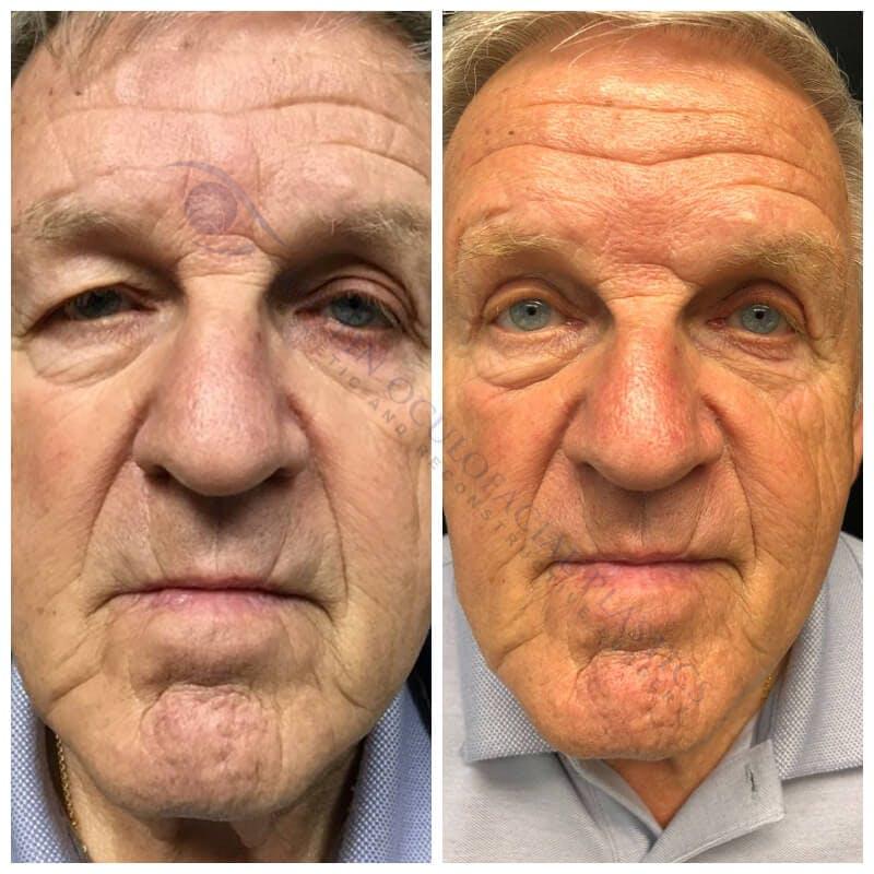 Heavy Upper Eyelids Gallery - Patient 4698678 - Image 1