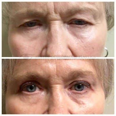 Heavy Upper Eyelids Gallery - Patient 4698679 - Image 1