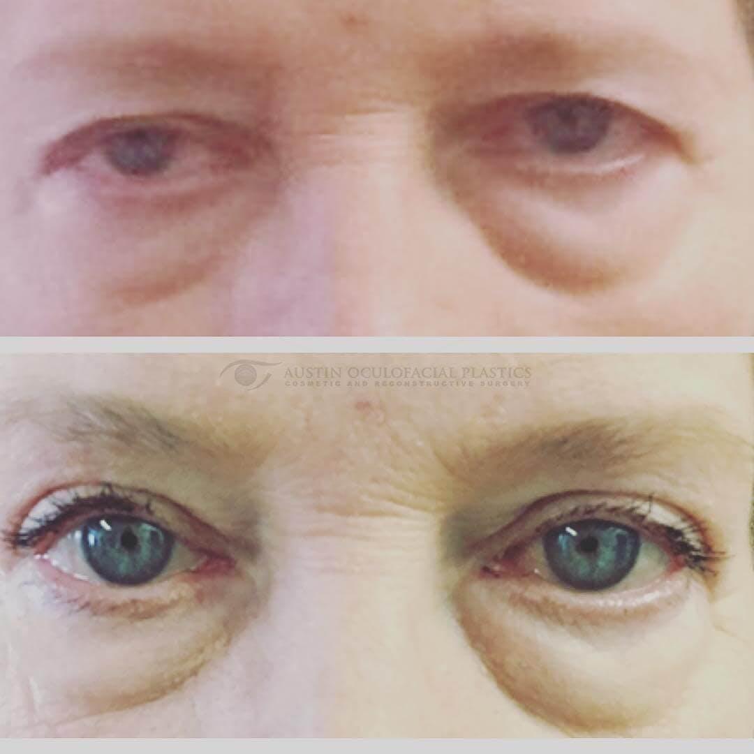 Heavy Upper Eyelids Gallery - Patient 4698680 - Image 1