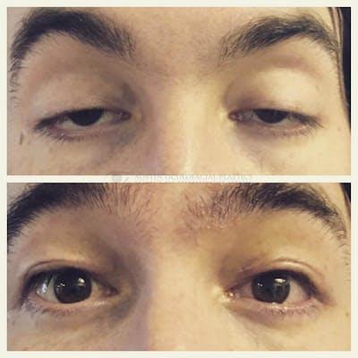 Heavy Upper Eyelids Gallery - Patient 4698681 - Image 1