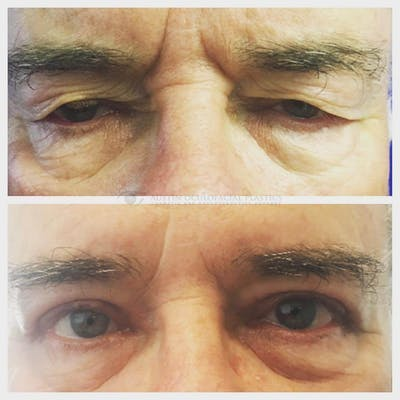 Heavy Upper Eyelids Gallery - Patient 4698683 - Image 1