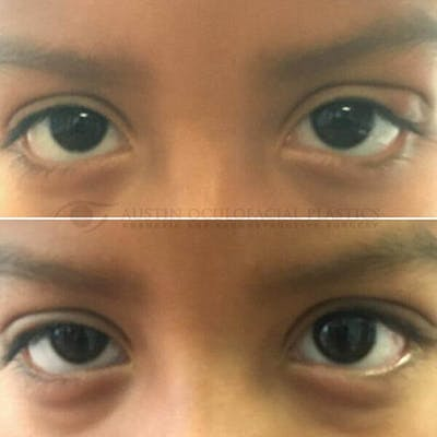 Heavy Upper Eyelids Gallery - Patient 4698685 - Image 1