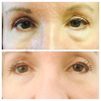 Heavy Upper Eyelids Gallery - Patient 4698688 - Image 1