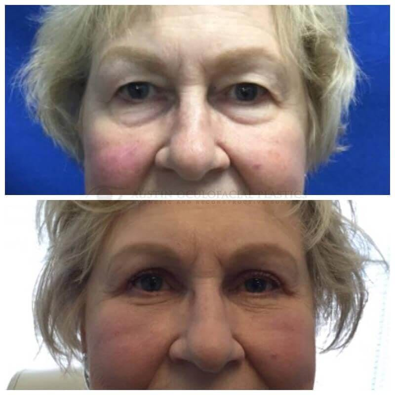 Lower Eye Bags Gallery - Patient 4698719 - Image 1